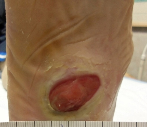 # Diabetic Foot Ulcers Pictures - How Do You Know If You ...