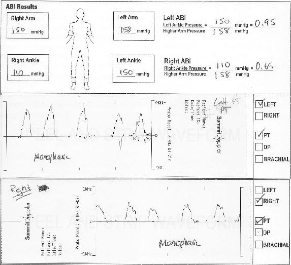 ankle brachial index case study