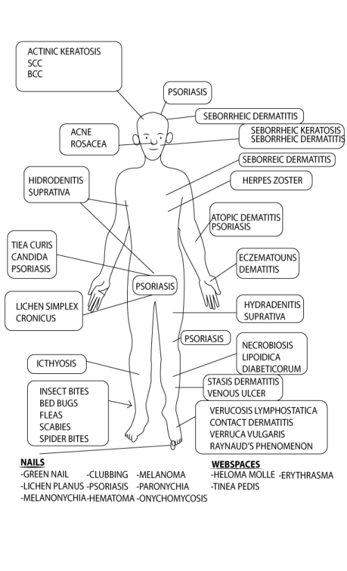 anatomy based differential diagnosis of wound conditions  u2013 360 wound care
